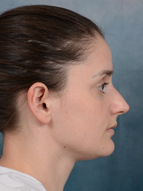 Rhinoplasty Gallery - Patient 13736918 - Image 9