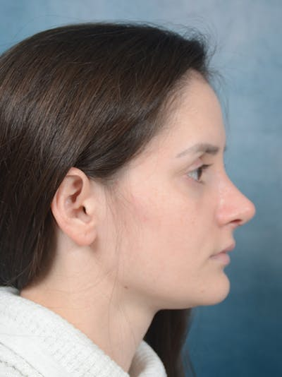 Rhinoplasty Gallery - Patient 13736918 - Image 10