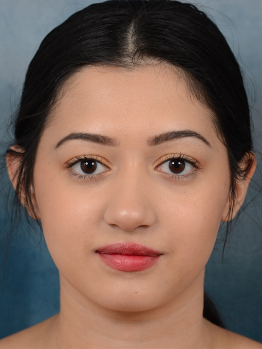 Rhinoplasty Gallery - Patient 14136151 - Image 10