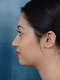 Rhinoplasty Gallery - Patient 14136151 - Image 1