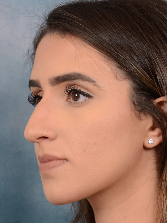 Rhinoplasty Gallery - Patient 14136199 - Image 3