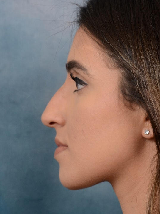 Rhinoplasty Gallery - Patient 14136199 - Image 5