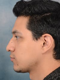Rhinoplasty Gallery - Patient 14391241 - Image 1