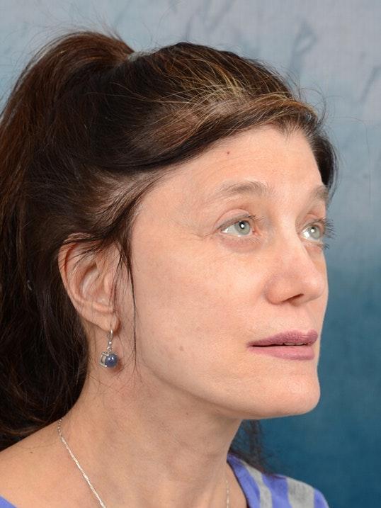 Facelift Gallery - Patient 14605187 - Image 8