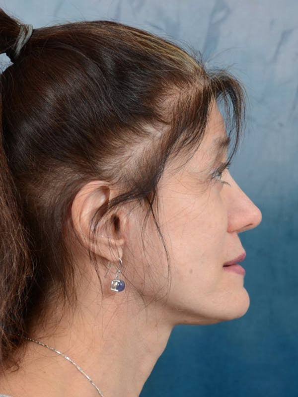 Facelift Gallery - Patient 14605187 - Image 10