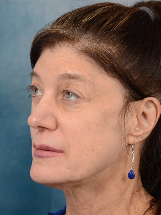 Eyelid Lift Gallery - Patient 14605191 - Image 3