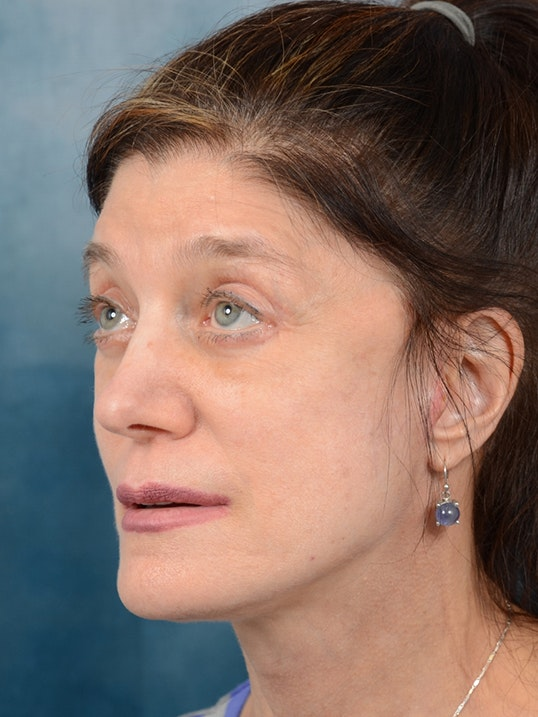 Eyelid Lift Gallery - Patient 14605191 - Image 4
