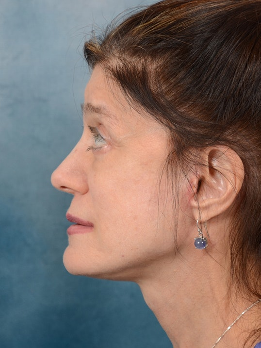 Eyelid Lift Gallery - Patient 14605191 - Image 6