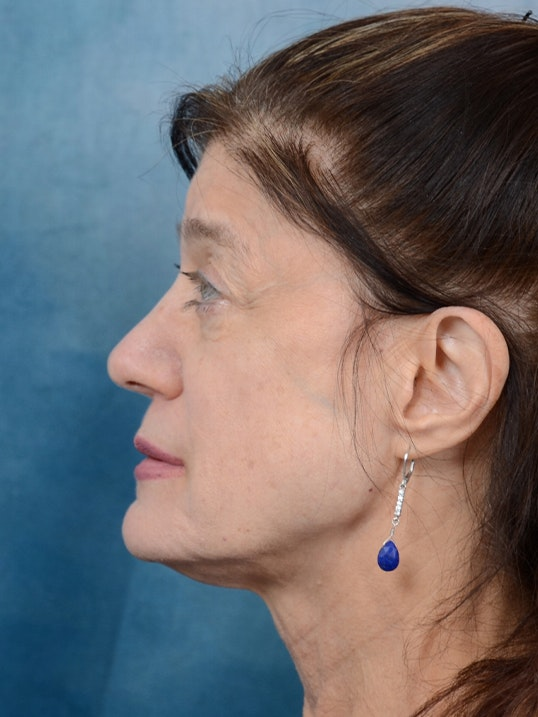 Eyelid Lift Gallery - Patient 14605191 - Image 5