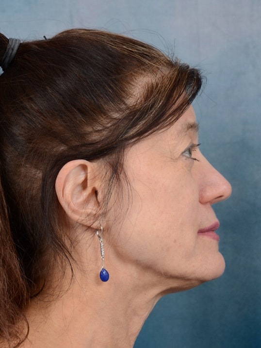 Eyelid Lift Gallery - Patient 14605191 - Image 9