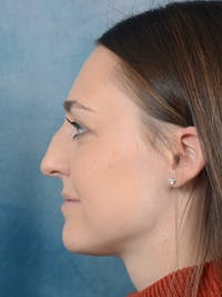 Rhinoplasty Gallery - Patient 15238973 - Image 1