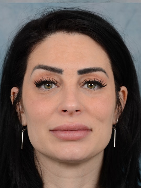 Rhinoplasty Gallery - Patient 9901040 - Image 2