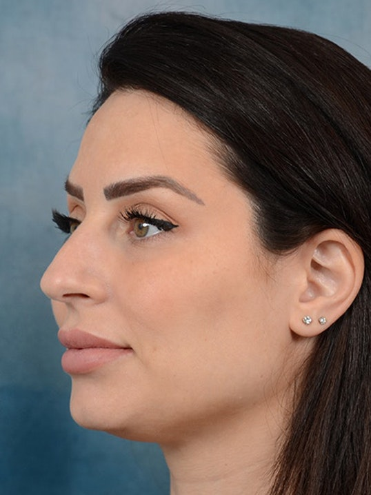 Rhinoplasty Gallery - Patient 9901040 - Image 3