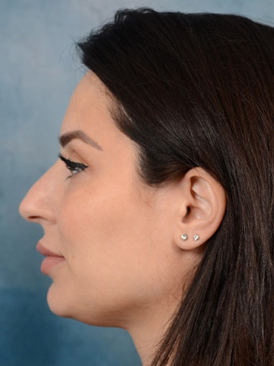 Rhinoplasty Gallery - Patient 9901040 - Image 5