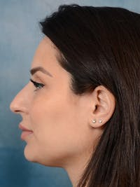 Rhinoplasty Gallery - Patient 9901040 - Image 1