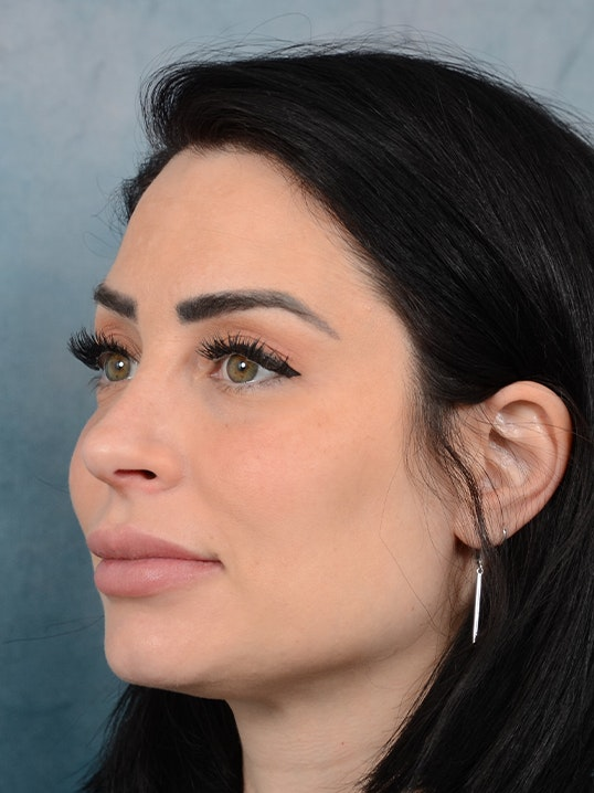 Rhinoplasty Gallery - Patient 9901040 - Image 4