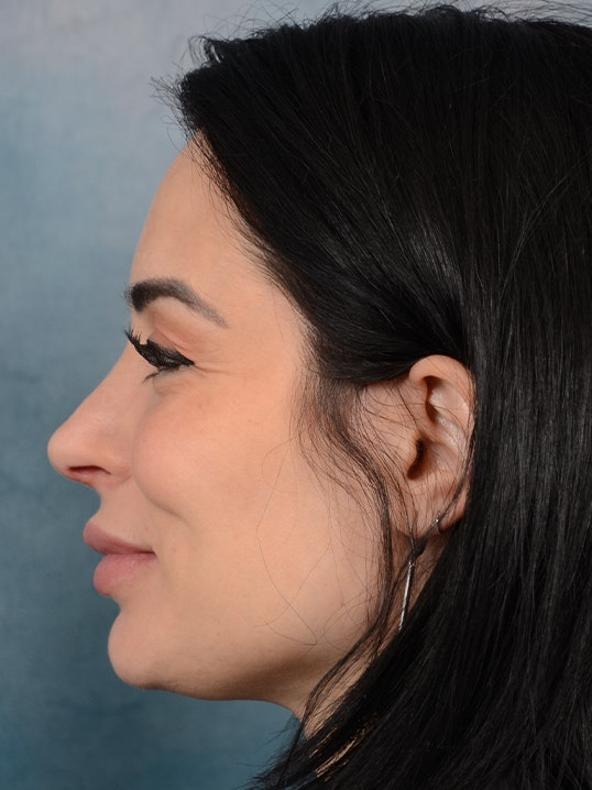 Rhinoplasty Gallery - Patient 9901040 - Image 6