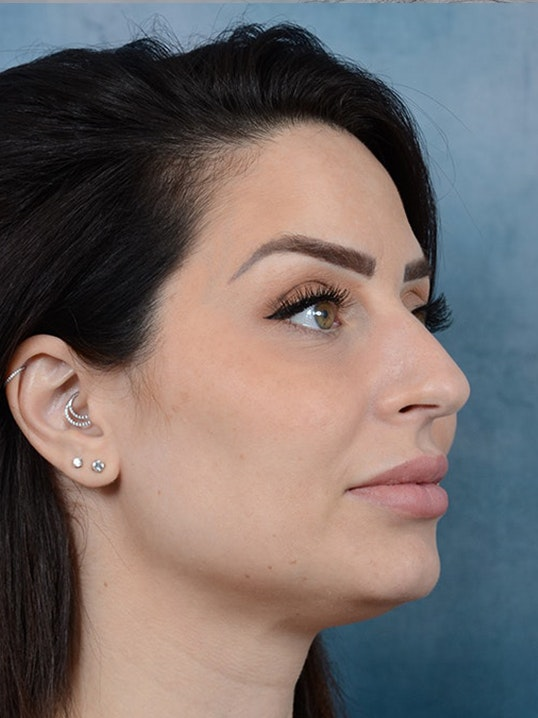 Rhinoplasty Gallery - Patient 9901040 - Image 7