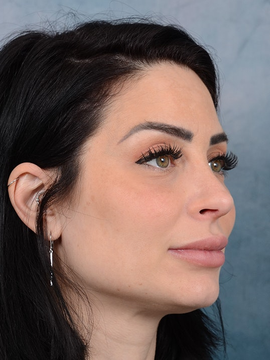 Rhinoplasty Gallery - Patient 9901040 - Image 8