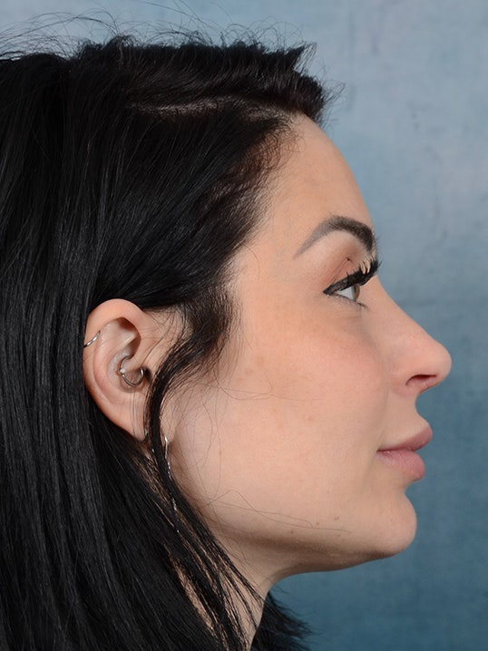 Rhinoplasty Gallery - Patient 9901040 - Image 10