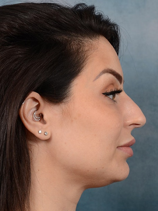Rhinoplasty Gallery - Patient 9901040 - Image 9