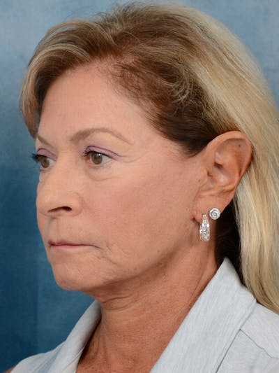 Facelift Gallery - Patient 15930433 - Image 1