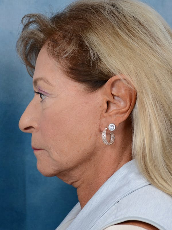 Facelift Gallery - Patient 15930433 - Image 5
