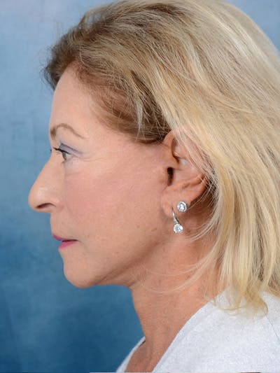 Facelift Gallery - Patient 15930433 - Image 6