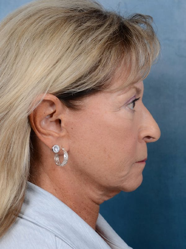 Facelift Gallery - Patient 15930433 - Image 9