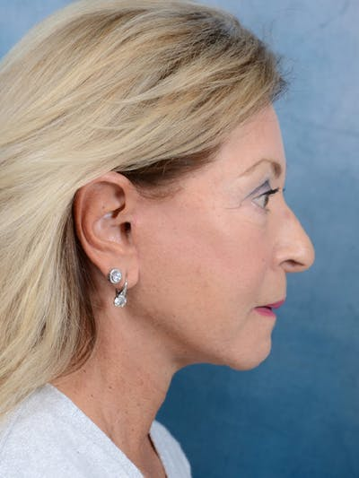 Facelift Gallery - Patient 15930433 - Image 10