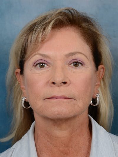 Brow Lift Gallery - Patient 15930450 - Image 1