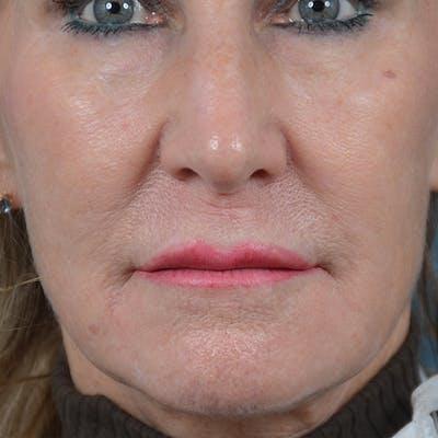 Lip Lift Gallery - Patient 16861941 - Image 1