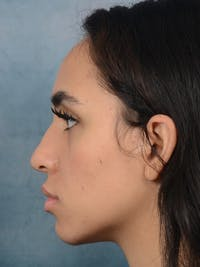 Rhinoplasty Gallery - Patient 16862101 - Image 1