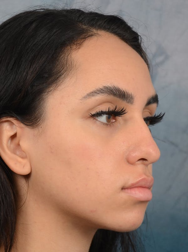 Rhinoplasty Gallery - Patient 16862101 - Image 7