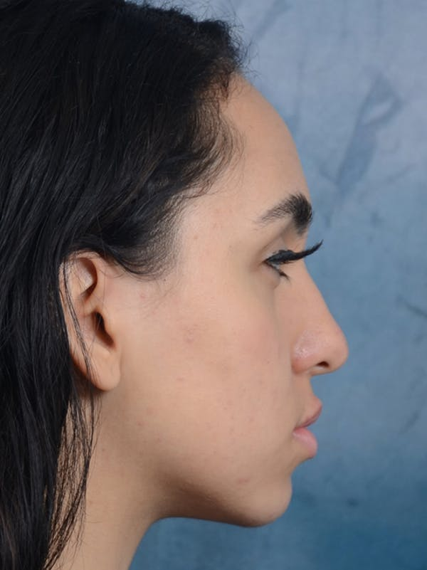 Rhinoplasty Gallery - Patient 16862101 - Image 9