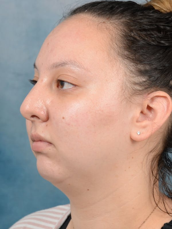 Chin Augmentation Gallery - Patient 18728002 - Image 3