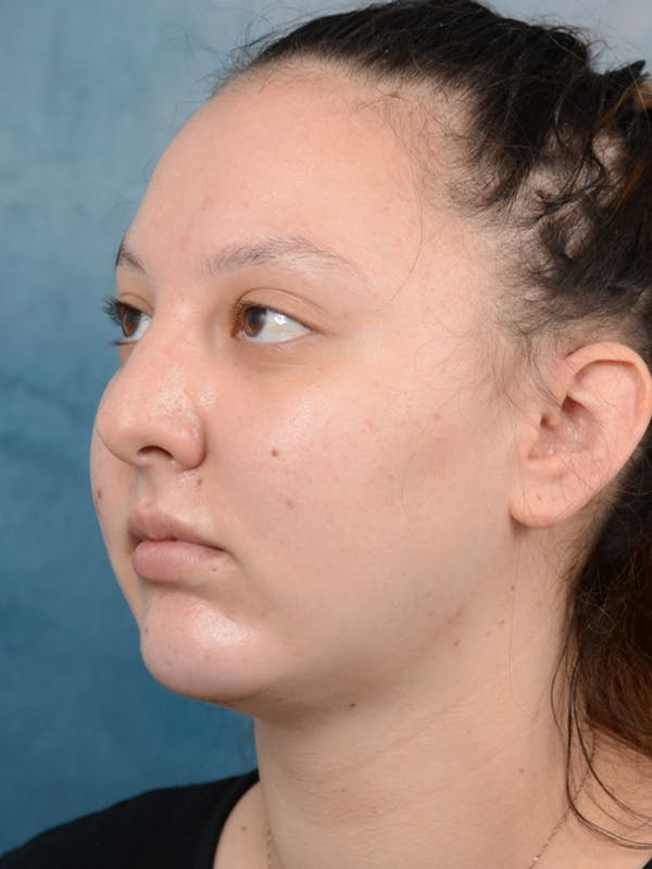 Chin Augmentation Gallery - Patient 18728002 - Image 4