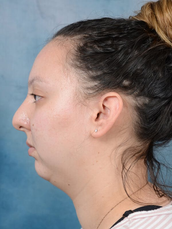 Chin Augmentation Gallery - Patient 18728002 - Image 5