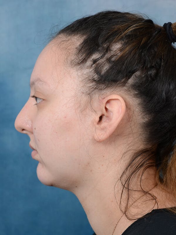 Chin Augmentation Gallery - Patient 18728002 - Image 6