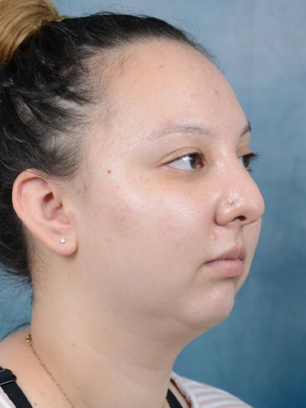 Chin Augmentation Gallery - Patient 18728002 - Image 7