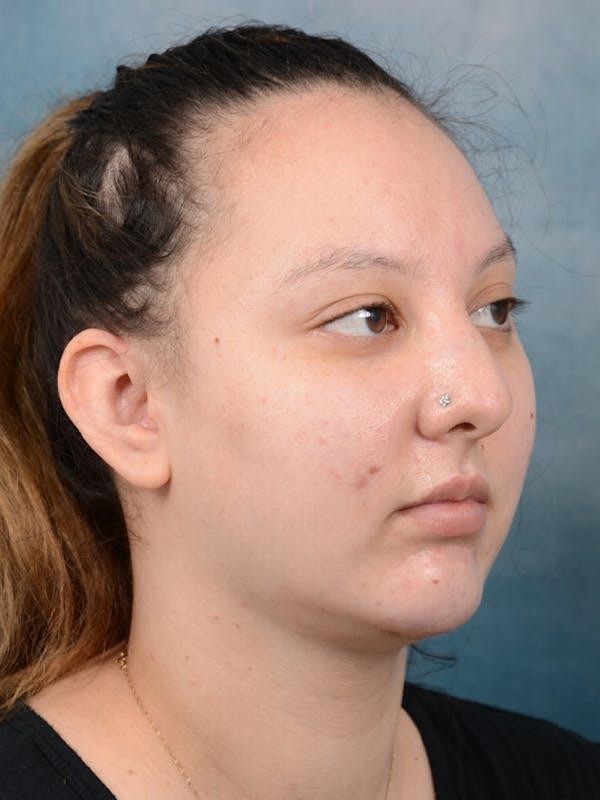 Neck Liposuction Gallery - Patient 18728009 - Image 8