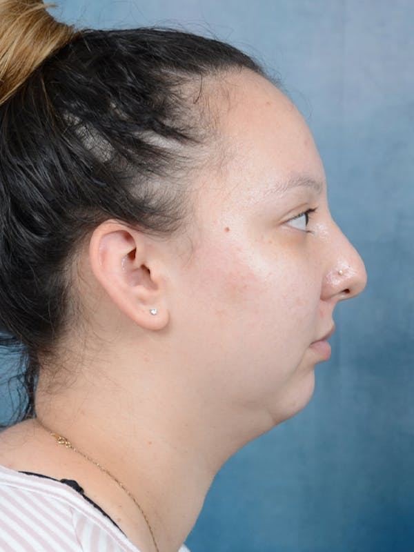 Chin Augmentation Gallery - Patient 18728002 - Image 9