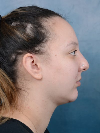 Chin Augmentation Gallery - Patient 18728002 - Image 10