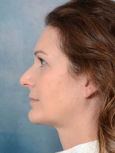 Chin Augmentation Gallery - Patient 18906829 - Image 6