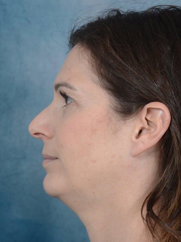 Neck Liposuction Gallery - Patient 18908197 - Image 5