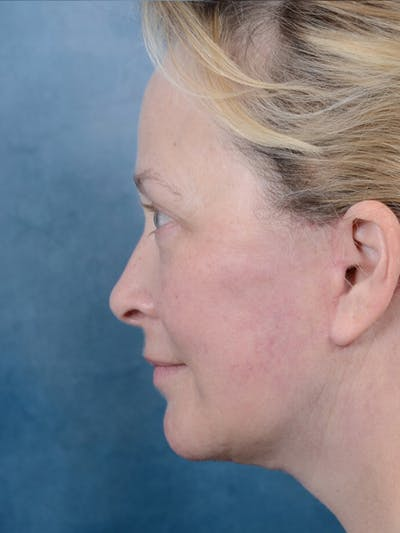 Facelift Gallery - Patient 18908946 - Image 6