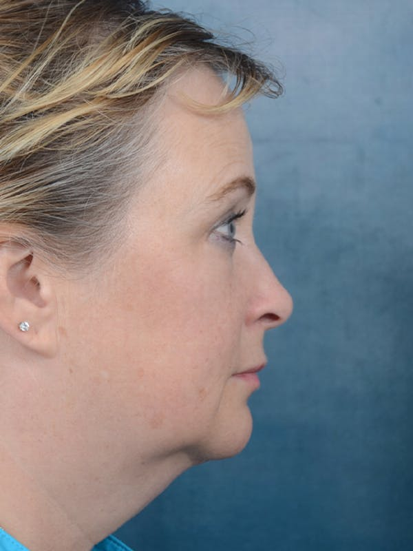 Facelift Gallery - Patient 18908946 - Image 9