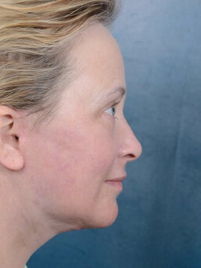 Facelift Gallery - Patient 18908946 - Image 10