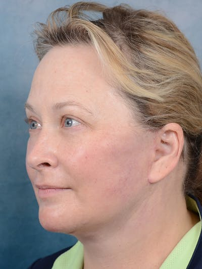 Laser Skin Resurfacing Gallery - Patient 18908953 - Image 4
