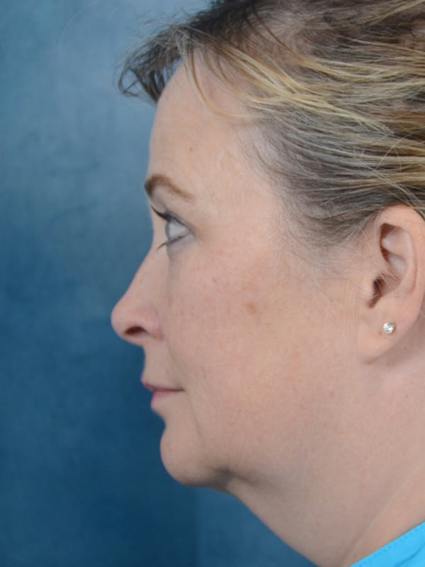 Laser Skin Resurfacing Gallery - Patient 18908953 - Image 5